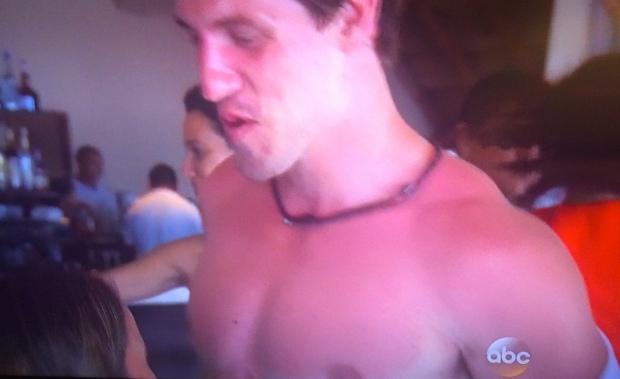 justin sunburn bachelor
